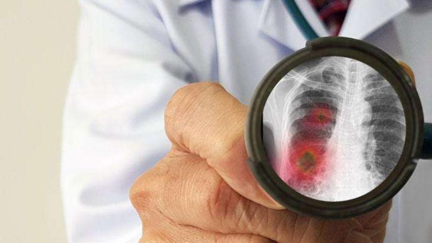 Heboh Pneumonia Baru yang Lebih Mematikan, Ini Kata WHO