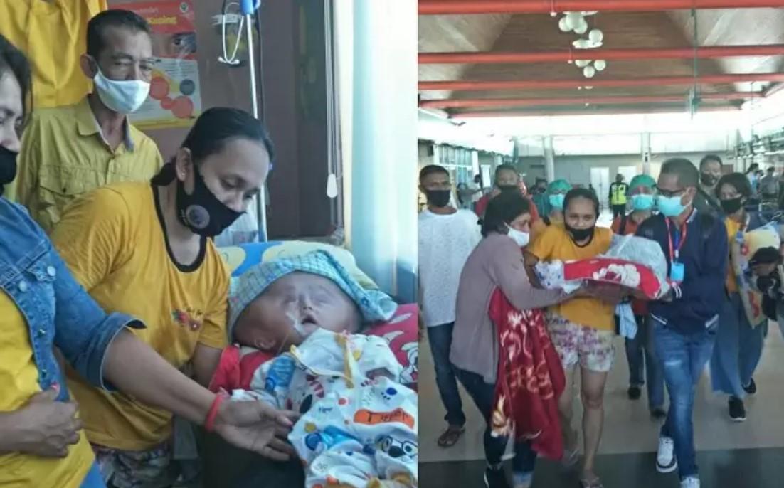Jadi Perhatian Pemprov Maluku, Bayi Penderita Hidrosefalus dan Spina Bifida Dirujuk ke Makassar