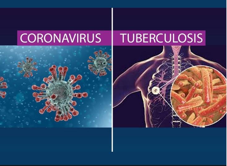 Pencegahan COVID-19 Juga Memiliki Dampak Memutus Penularan Tuberkolosis