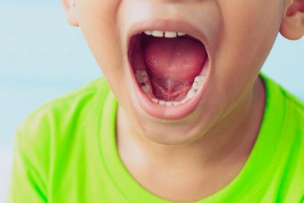 Tips Cegah Gigi Berlubang pada Anak
